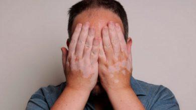 Vitiligio: una enfermedad de la piel que aísla 10