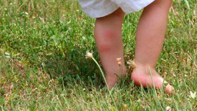 Verano saludable: Cómo proteger a los niños de las picaduras de mosquitos 12