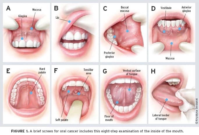 Del 5 al 9 de agosto: Campaña gratuita de diagnóstico temprano y prevención del cáncer de boca 4