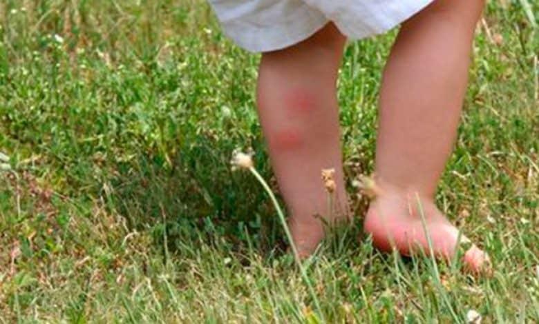 Verano saludable: Cómo proteger a los niños de las picaduras de mosquitos 2