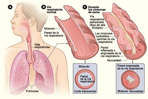 ¿Qué es el Asma Bronquial? 4